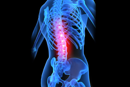 Back injuries are one of many types of injuries suffered by Pine Bluff residents every day. If you have been hurt, contact a Pine Bluff, Arkansas personal injury lawyer today for a free consultation.